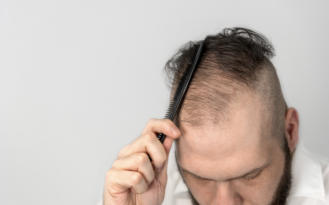 Does Finasteride Work for Hair Loss?